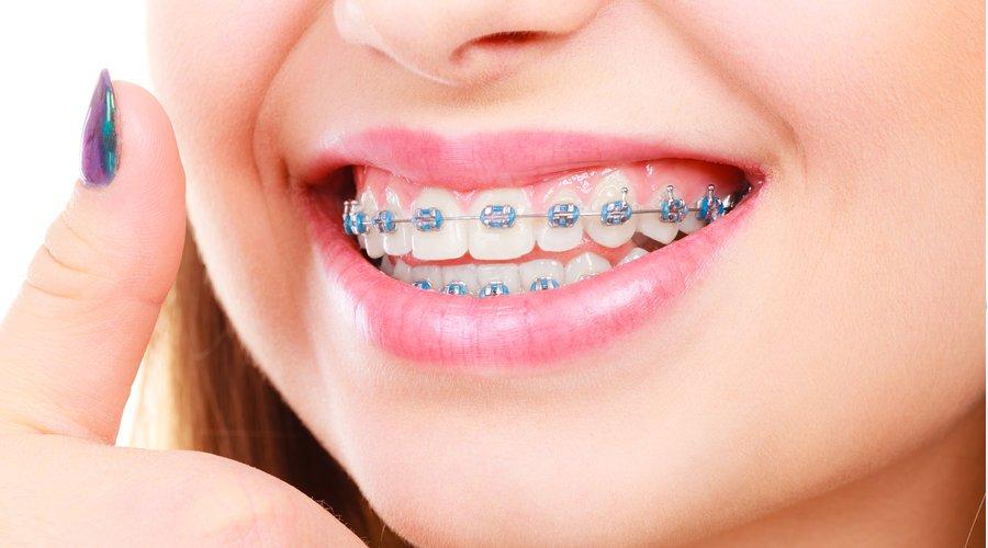 Ortodoncia En La Mejor Dental Life